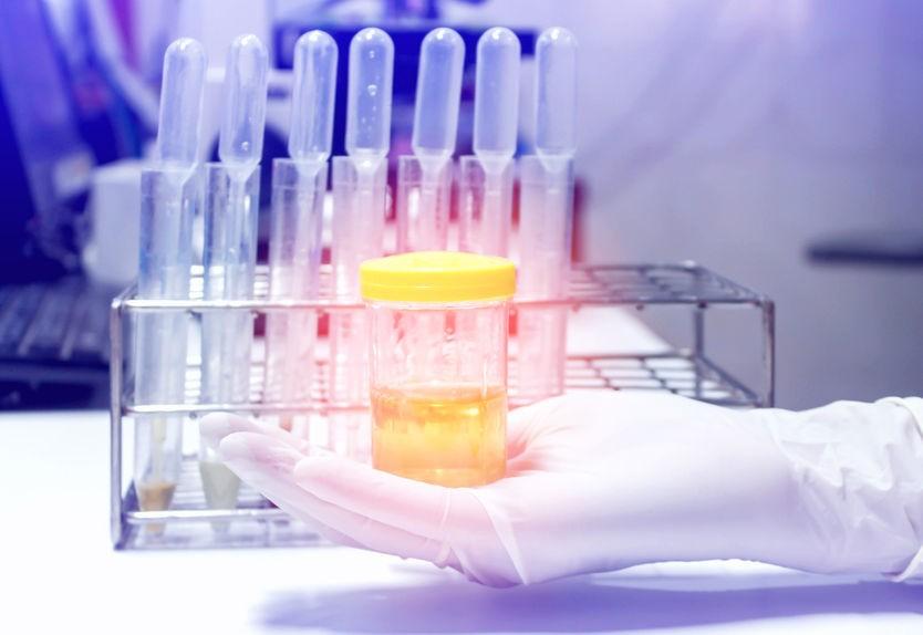 4 Benefits of Performing Random or Pre-Employment Drug Testing